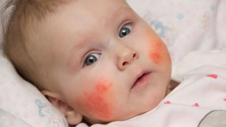 Картинки по запросу Острые проблемы с кожей у детей